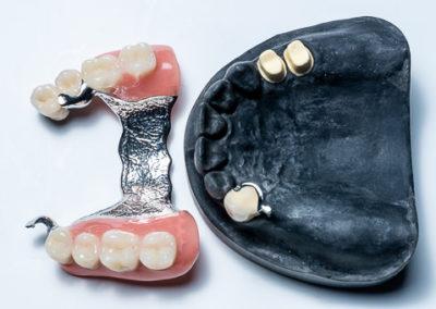 Geschiebearbeit Büttner-Dentaltechnik