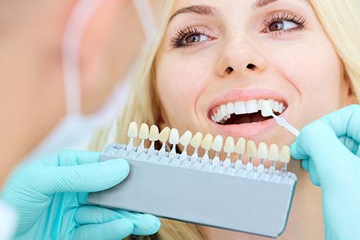 Individuelle Farbnahme - Buettner Dentaltechnik