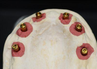 Implantattechnik - Büttner Dentaltechnik