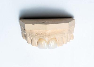 Veneer Büttner-Dentaltechnik